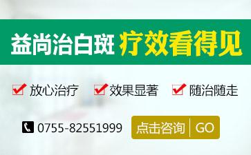 深圳治白癜风最有效医院